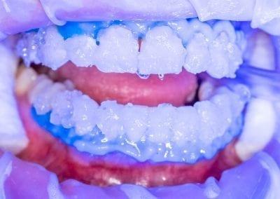 Dantų balinimas Klinikoje