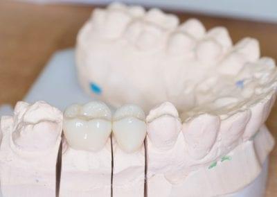 Dantų protezavimo bemetale keramika pavizdys 3