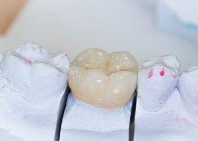 Dantų protezavimo bemetale keramika pavizdys 4