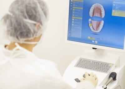 Dantų protezavimas CAD CAM skaneriu